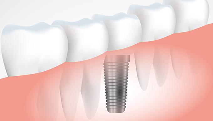 a356713a1 Implante dentário  tire todas as suas dúvidas sobre o assunto ...